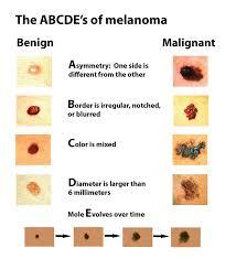 Mole Chart For Skin Cancer Melanoma Harvard Health