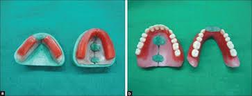 Teeth Setting View Image
