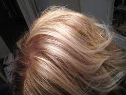 does vyvanse cause hair loss 5 truths