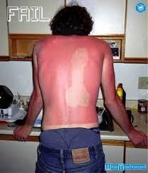 Lustiger Sonnenbrand In Penisform Auf Dem Rücken Witzemaschine