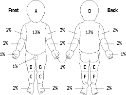 Rule Of 9 S Burn Chart Child The Clinical Use Of Blood Handbook Burns Assessing The
