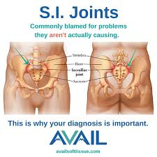 si joint pain relief acupuncture