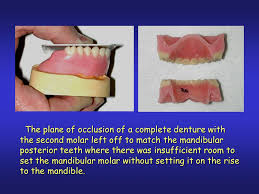 teeth setting complete dentures the wax try in ppt download