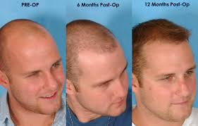 hair transplant how it works the best fut hair transplant in dubai is now available at dubai hair
