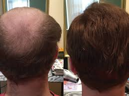 Male Pattern Baldness In Women Impressive Male Pattern Baldness Solution Newton MA Patch
