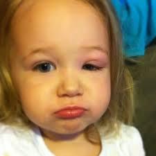 Swollen Eyes in Babies - New Kids Center