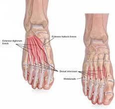 Pijn op wreef: pijn bovenkant voet, oorzaken pijnlijke wreef