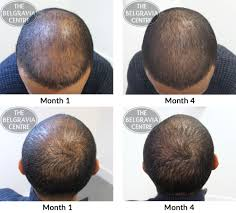 very pleased about my course of treatment i can see some real improvements in my hair growth overall very happy