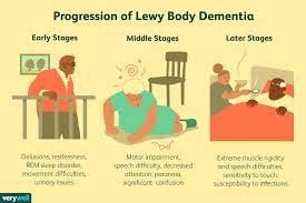 Difference Between Alzheimer S And Dementia Chart Stages And Progression Of Lewy Body Dementia