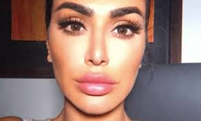 must read why removing my lip filler
