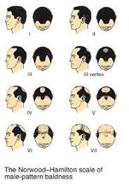 Mens Hair Loss Faq Embassy Studio And Med Spa