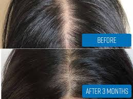 biotin for hair growth results