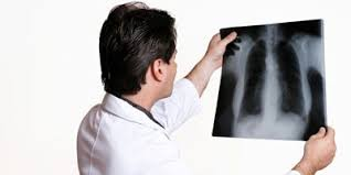 X Ray Technician X Ray Technician View Specifications Details By
