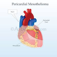 pericardial sac pericardial mesothelioma overview of malignant heart cancer