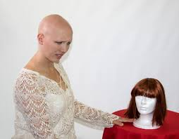 alopecia can cause emotional distress but using a wig or shaving the head can ease these difficulties