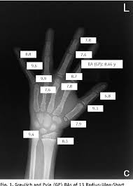 Bone Age Wrist Chart Figure 3 From Maturation Disparity Between Hand Wrist Bones