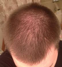Scalp Visible Under Light The Ultimate Hair Loss Survival Guide For Men Faq Page