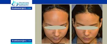 forehead reduction surgery hairline