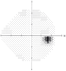 Visual Field Testing From One Medical Student To Another