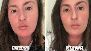 Neutrogena Light Therapy Acne Mask Results Review I Tried Foreos Ufo Face Mask Device And Loved My