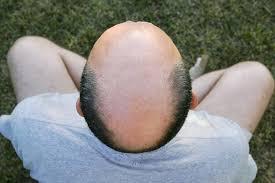 hair loss 9 myths about baldness