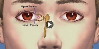 dry eye treatment option page punctal plugs
