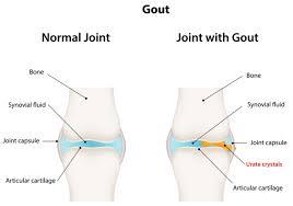 Uric Acid Range Chart How Long Does Gout Last These 3 Factors Determine The