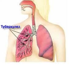 Болезни органов дыхания и их предупреждение урок Биология  pulmonary tuberculosis jpg