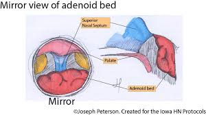 Tonsillectomy And Adenoidectomy Iowa Head And Neck Protocols