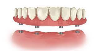 full mouth dental implant cost villa
