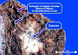 smokers lungs pictures smokers lungs vs healthy lungs picture of smoker s lung emphysema and lung cancer