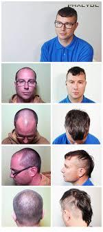 Trichopigmentationvlasy Zahušťování