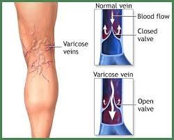 Leg Vein Chart Leg Vein Diagram Wiring Diagrams Folder