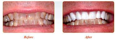Smile Gallery Virtue Dental Care Yadkinville