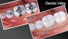 Dental Inlay Prosthodontics Dental Restorations Services In Singapore