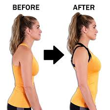 Back Braces Posture Corrector for Women Men and Kids + FREE Resistance Band