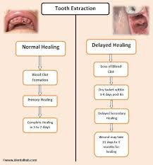 tooth extraction refers to painless removal of tooth or tooth roots with minimum trauma to the