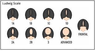 Understanding Hair Loss In Men Women Pai Hair Clinic