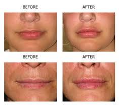 lip augmentation san antonio juvederm