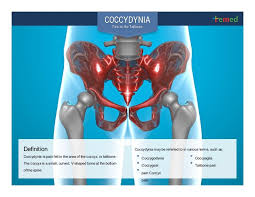 Coccydynia Pain In The Tailbone Causes Symptoms And Treatment Te