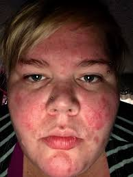 woman with red rash and raised ps on her face