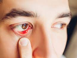 stye inside the eyelid overview and more