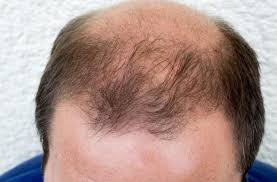 Male Pattern Baldness Cure Adorable Osteoporosis Compound May Provide MalePattern Baldness Cure Think