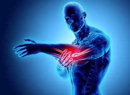 「手首 怪我 フリーイラスト」の画像検索結果