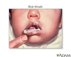 mouth ulcers information mount sinai