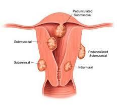 Understanding Uterine Fibroid Size How Big Is Too Big