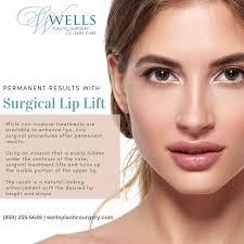 surgical lip lift lexington ky
