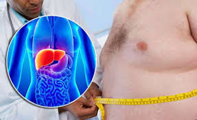 Fatty Liver Diet Chart In Telugu 7 Best Natural Remedies For Treating Fatty Liver Disease