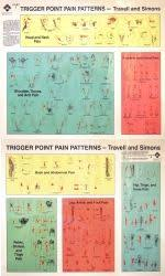 47 Prototypic Travell Trigger Point Chart