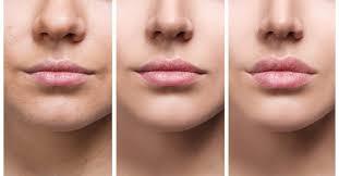 lip flip vs lip filler know the
